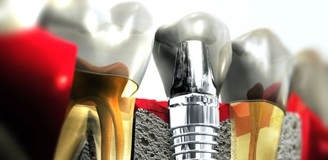 dr mongalo cosmetic dental, implant cost miami, doral, coral gables, bal harbour, hollywood, fl